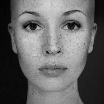hogyan lehet eltávolítani a vörös foltokat az arcon. mit tegyünk, ha vörös foltok vannak a lábakon