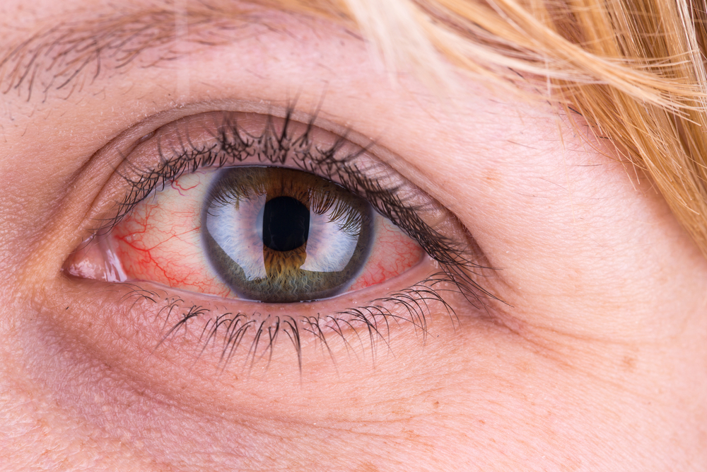a szem alatt vörös pikkelyes folt