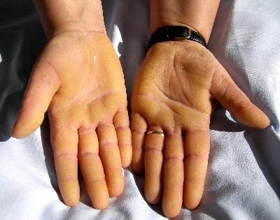 2 súlyos betegség a viszkető, vörös foltok mögött - Egészség   Femina