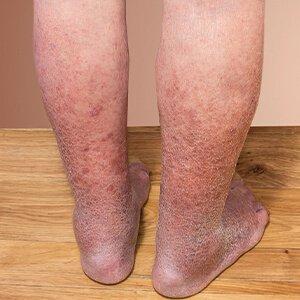 vörös folt a lábon visszér