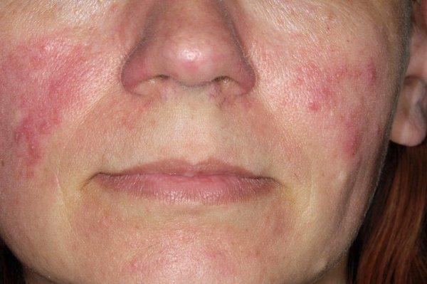 száraz bőr az arcon vörös foltok