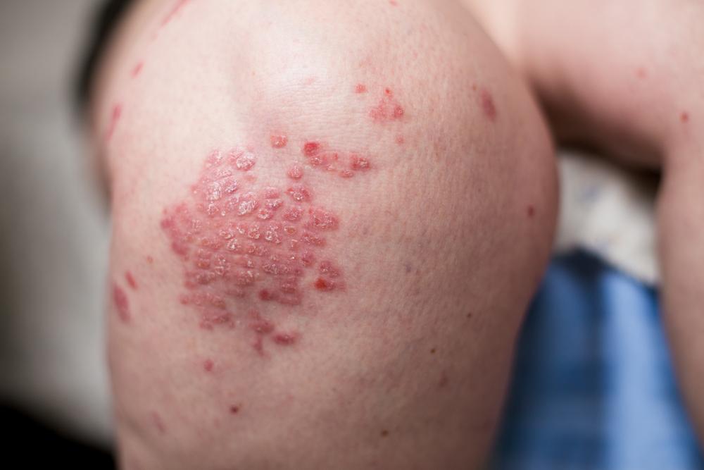 hatékony gyógymódok pikkelysömör kezelésére vörös folt jelenik meg az arcon és viszket