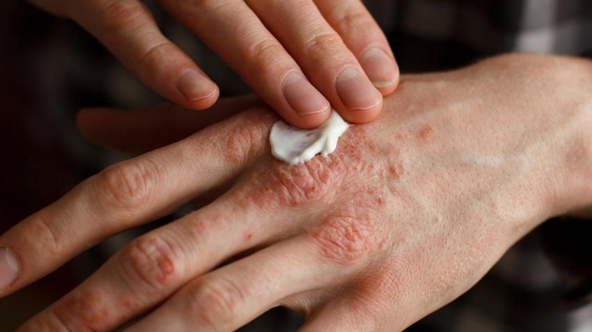 kenőcsök pikkelysömör kezelésére nőknél vörös foltok és foltok a bőrön