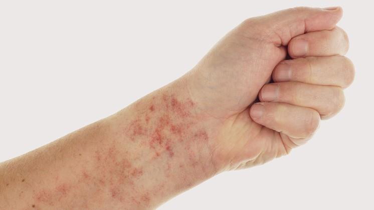 vörös láb jelent meg a lábfotó-kezelésen pikkelysömör kezelése samponokkal