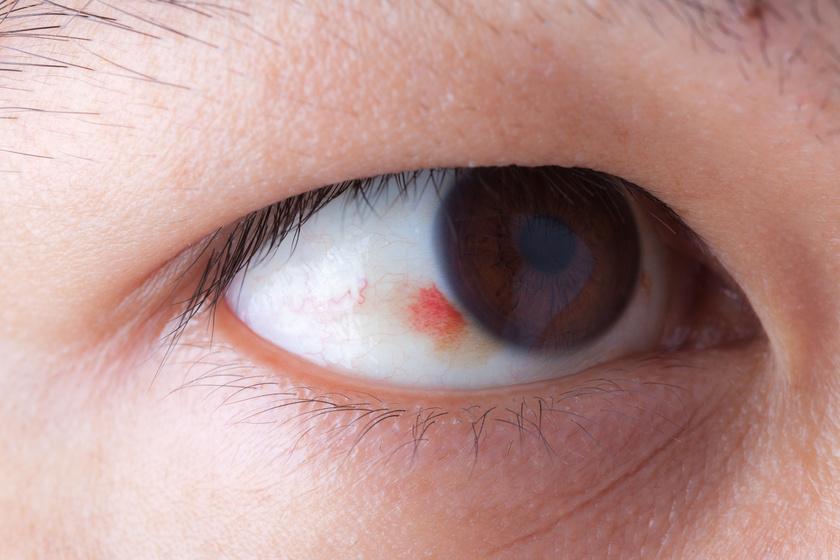 A vörös szem