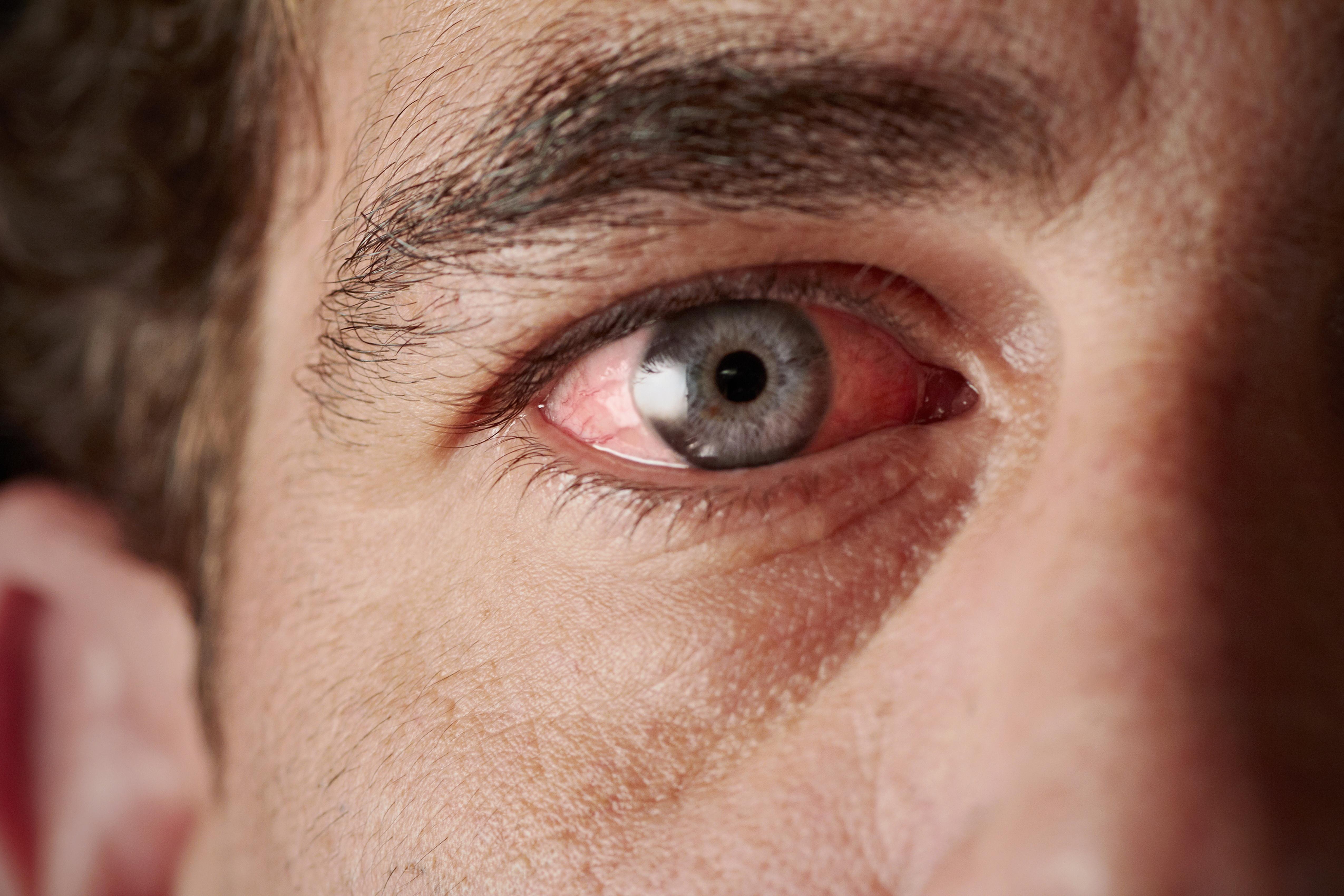 a szem alatt vörös pikkelyes folt irritáció az arcon vörös foltok hámlanak