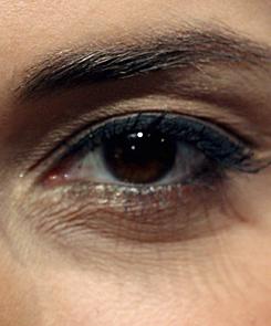 az alsó szemhéjon vörös foltok hámlanak le kenőcs pikkelysömör kezelésére vélemények