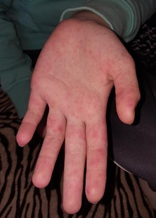 milyen vörös foltok vannak a tenyéren és viszket pikkelysömör etiológiai diagnózis kezelése