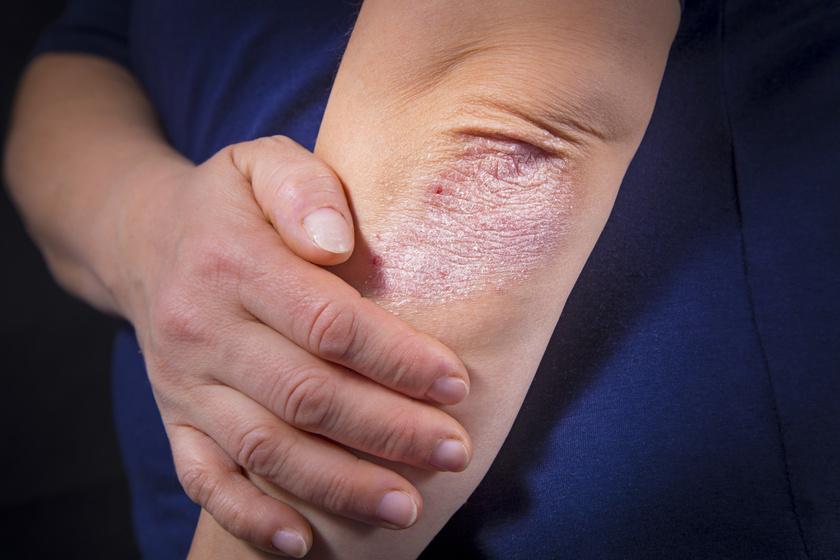 gyulladt plakkok pikkelysömör kezelésével