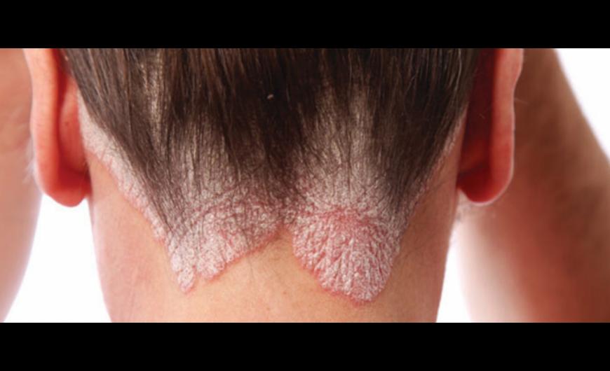 Pikkelysömör bio argánolaj kezelése - ArganNatura bio argánolaj webáruház