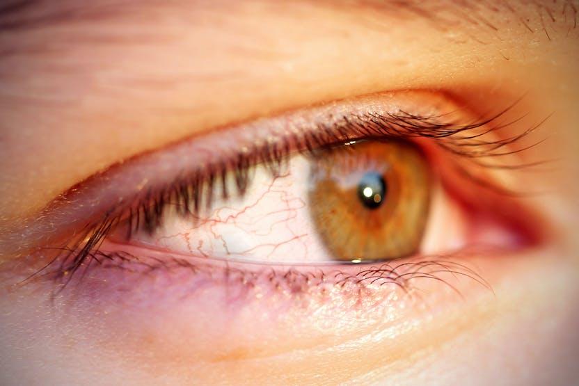 a szem vörös foltja okozza a kezelés módját