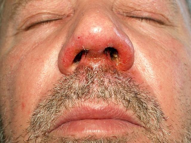 távolítsa el a vörös foltokat az arcon a sebektől vörös foltok és viszketés a testen