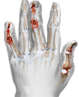 Ízületi gyulladással járó pikkelysömör - Arthritis psoriatica - Súlypont Ízületklinika