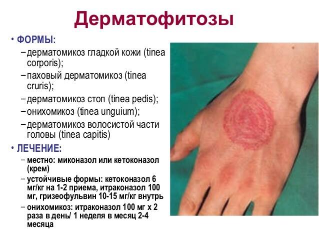 vörös folt a lábán pattanásokkal