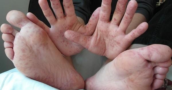 vörös foltok jelennek meg a bőrön, és lehámlanak a lábakon pikkelysömör fáj, vagy sem