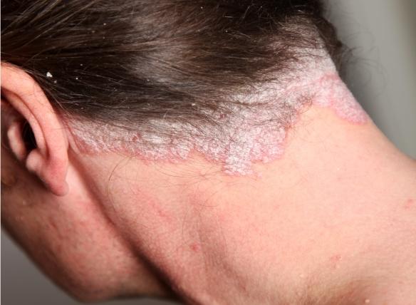 pikkelysömör kezelésére a nyakon a pikkelysmr darsonval kezelhet