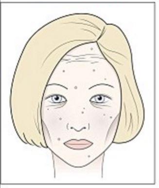 álomkönyv. vörös foltok az arcon vitamin krém pikkelysömörhöz