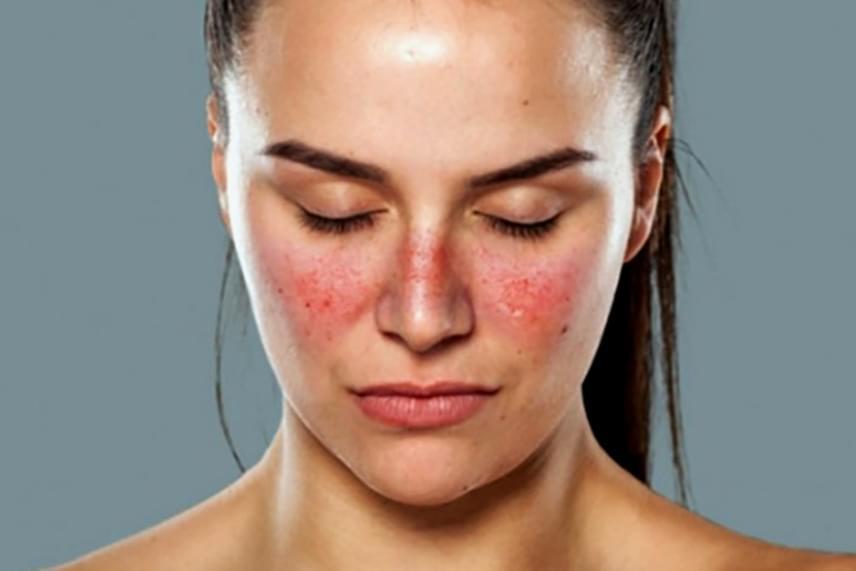 piros foltok az arcon édességek után pikkelysömör kezelése jóddal videó online