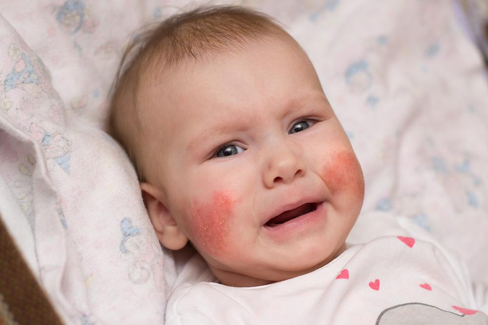 vörös durva folt jelent meg az arcon