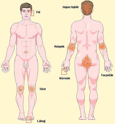 pikkelysömör kezelése vazelin vörös vizes foltok jelentek meg a gyomorban