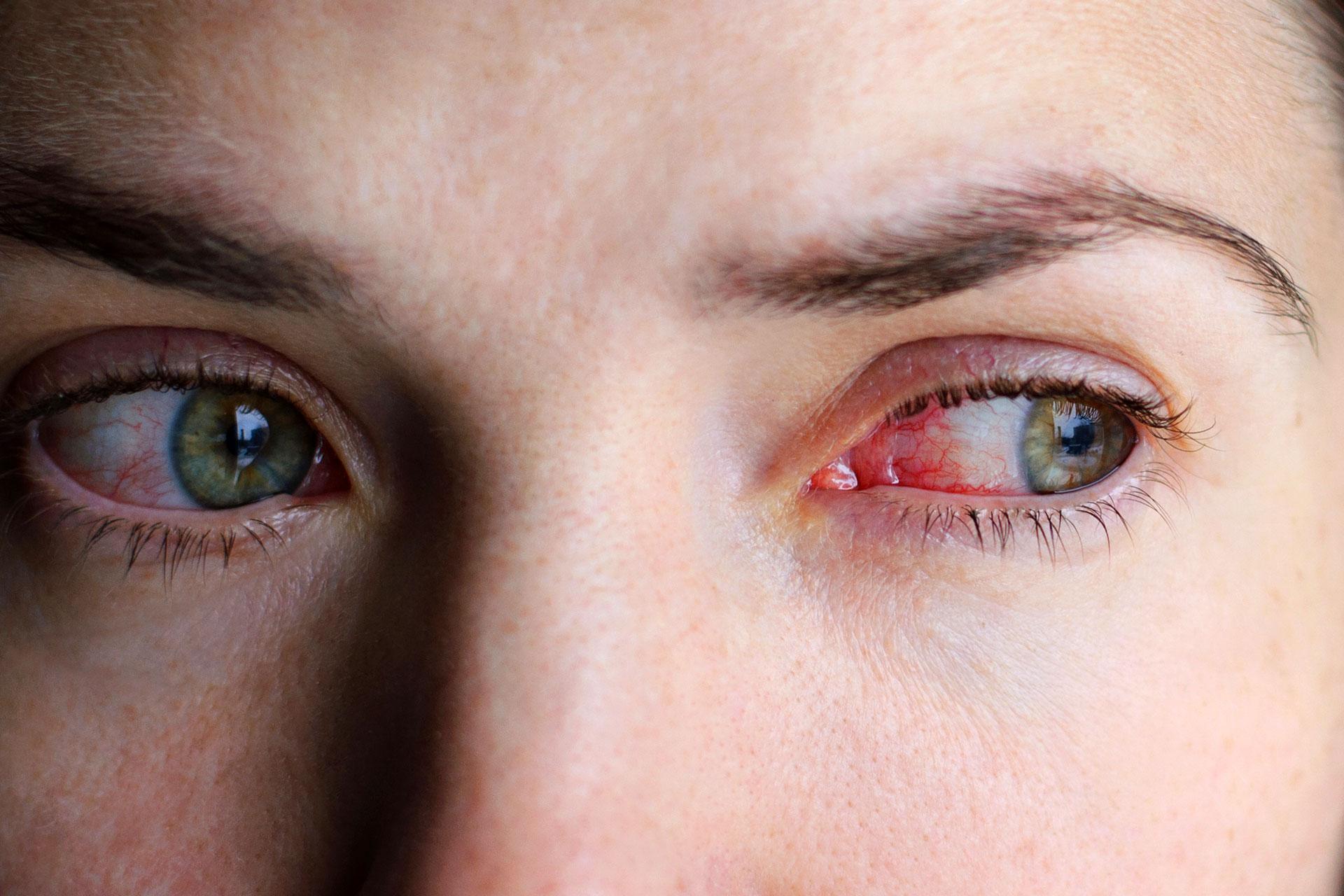 hogyan lehet eltávolítani a szem vörös foltját pikkelysömör tüneteinek kezelési módszerei