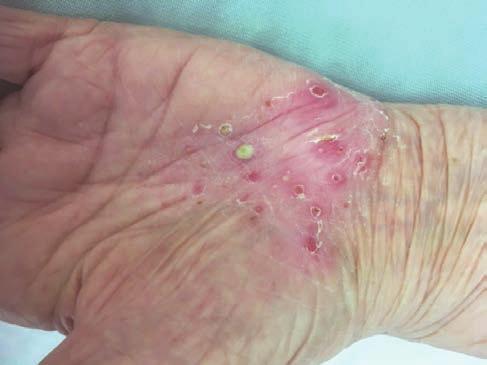 Psoriasis vulgaris