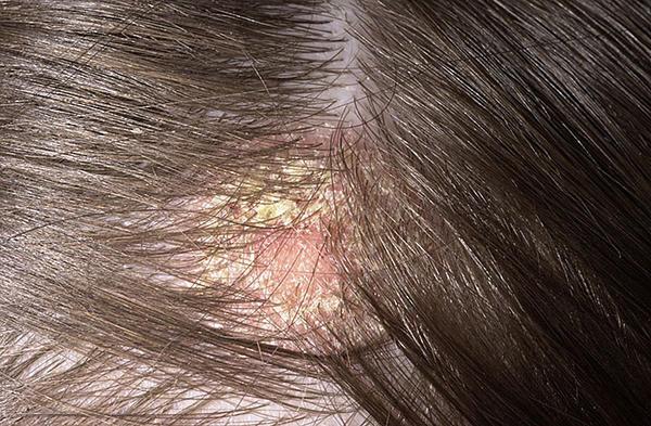 fejbőr psoriasis kezelése hormonok nlkl vörös folt a lábán, mint egy anyajegy