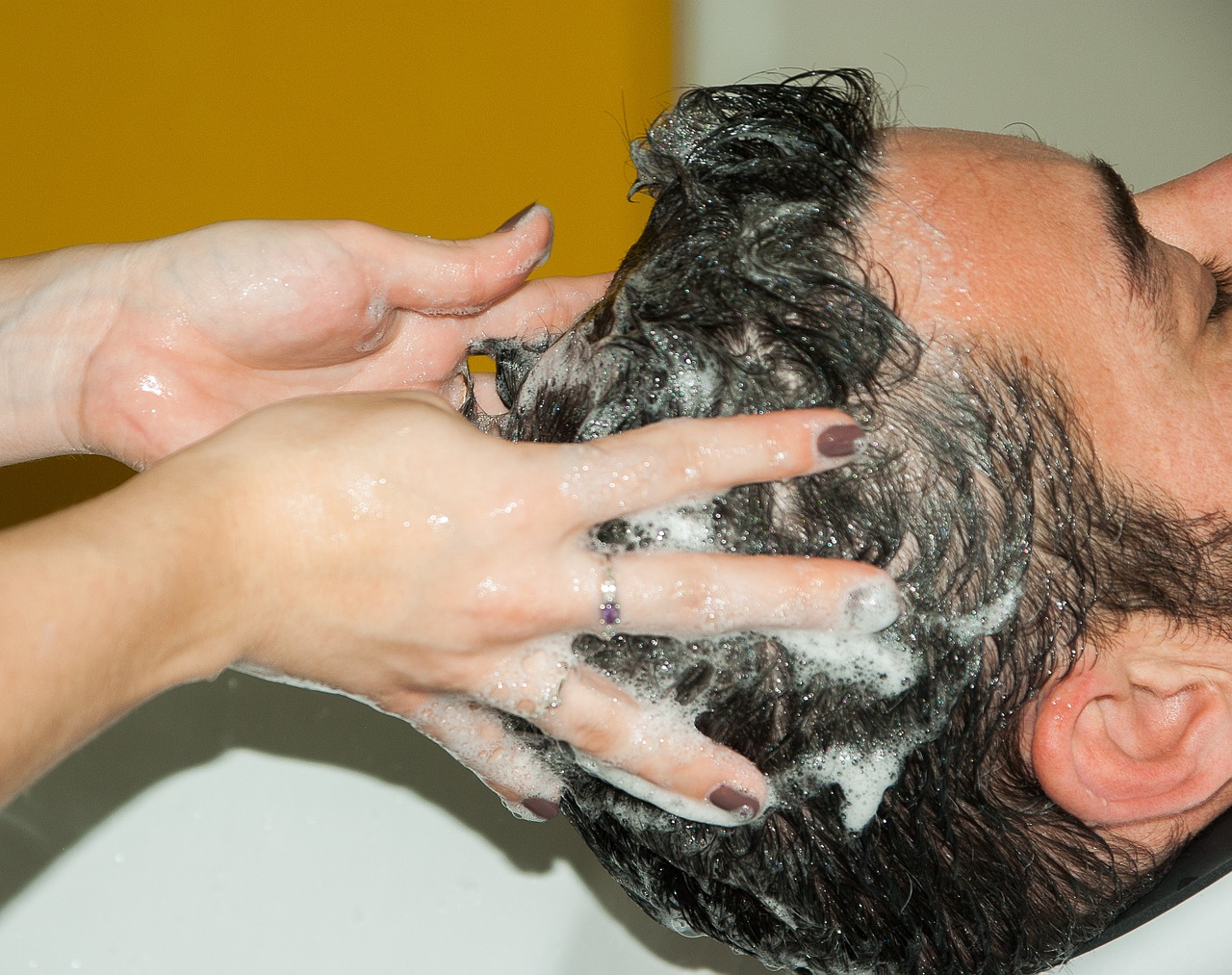 Szeborrea, Seborrhoea okozta hajhullás - DR. IMMUN Hajhullás ellen