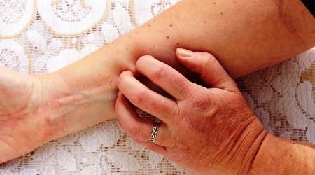 krém a tiszta bőrért a pikkelysömör és a dermatitis ellen