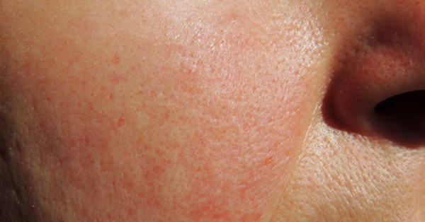 piros viszkető foltok a lábakon fotó hormonokkal pikkelysömörrel kezelhetk