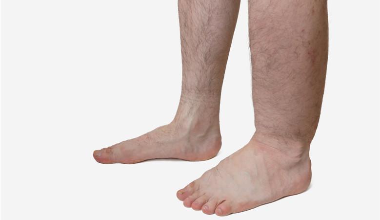 vörös foltok a lábakon, duzzadt lábak
