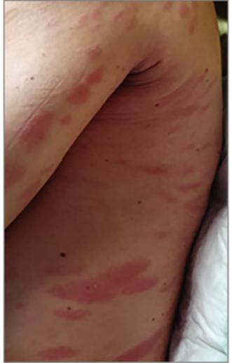 HIV vörös foltok a bőrön