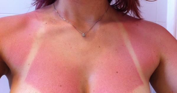 vörös foltok a bőrön leégés után fotó