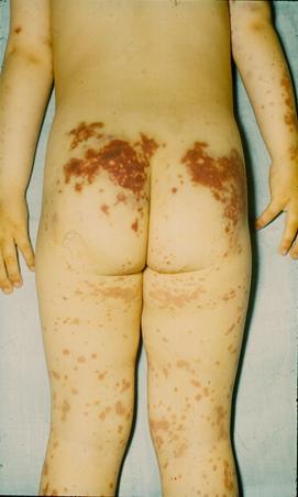 vörös foltok a lábán a térd alatt kis piros folt a bőr fotóján