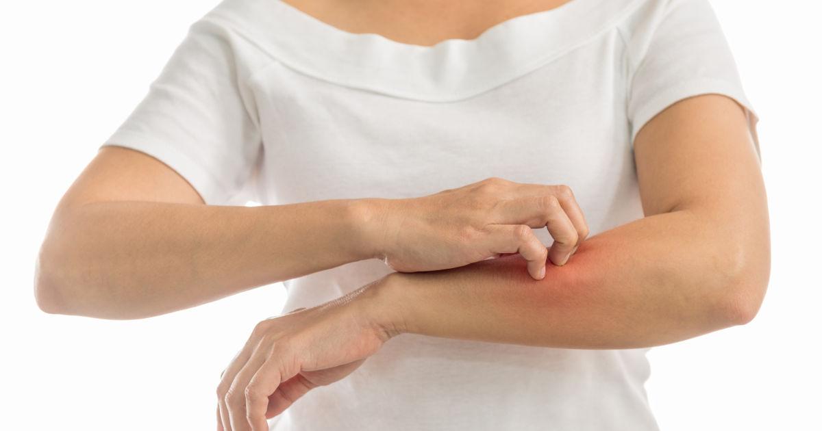 kiütések vörös foltok formájában a kezeken és a lábakon