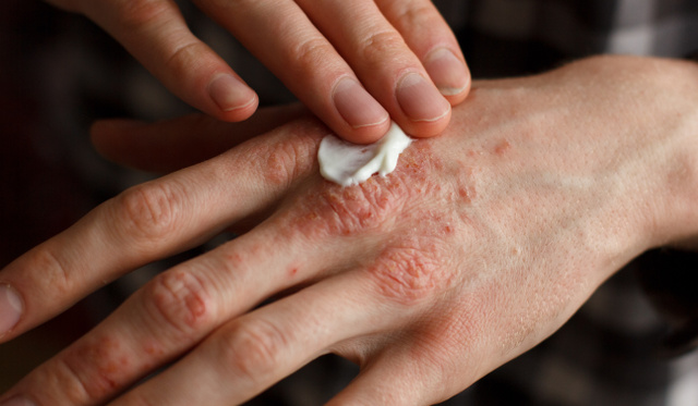 pikkelysömör kezelése Litvánia a fejbőr pikkelysömörének kezelésének modern módszerei