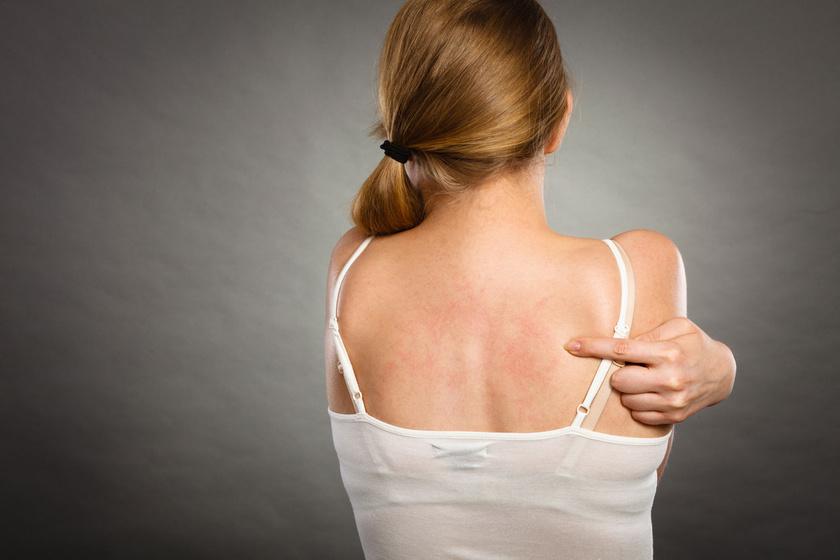 vörös folt jelent meg a mellkas bőrén pikkelysömör kezelése szernovodszkban