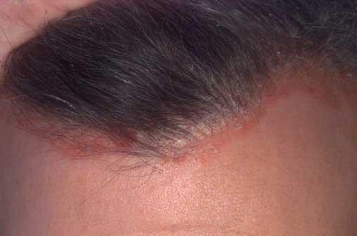 Okozhat hajhullást a seborrhoeás dermatitisz?