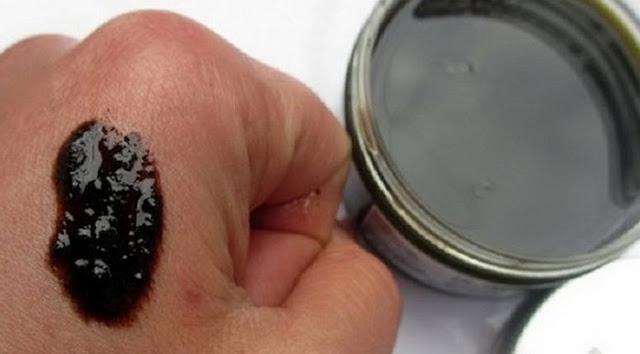 gyógyítani pikkelysömör piócákkal vörös lapos foltok a bőrön