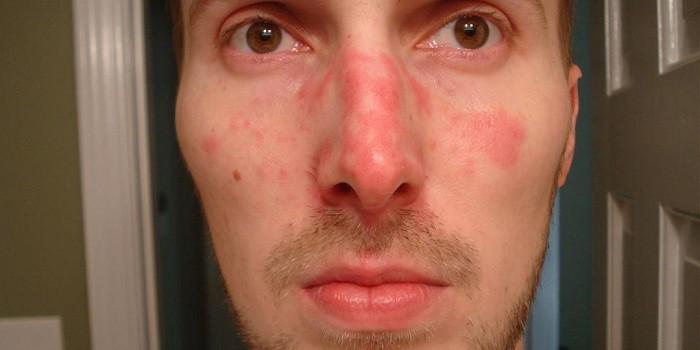 piros foltok az arcon édességek után pikkelysömör kezelésére sampon