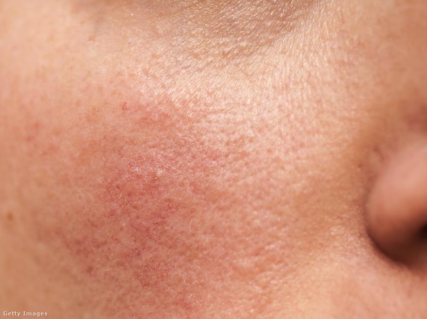 Bőrproblémák hormonzavar miatt – mely probléma mit jelezhet?