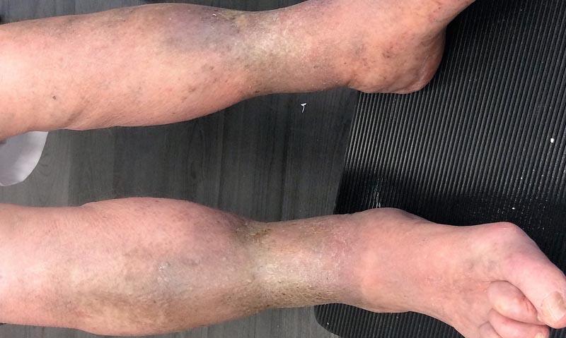 visszér a lábakon és vörös foltok akupunktúra pikkelysömör kezelés vélemények