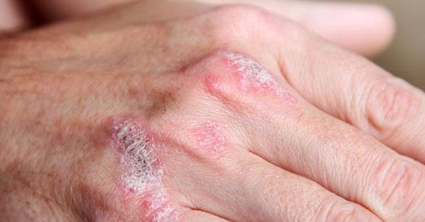 pikkelysömör felnőttek kezelésében menstruáció alatt vörös foltok az arcon