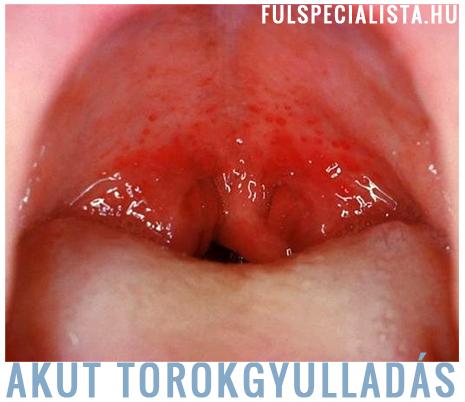 Torok- és mandulagyulladás