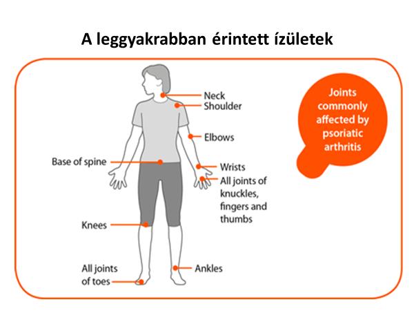 vörös foltok a lábakon okokat és kezelést lehet-e pikkelysömör kezelni szódával