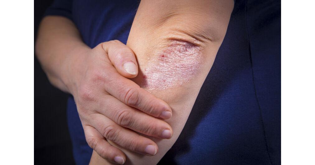 Aki pikkelysömörben szenved, annak nincs rákja az ujjak párnái piros foltokat fájnak a kezeken