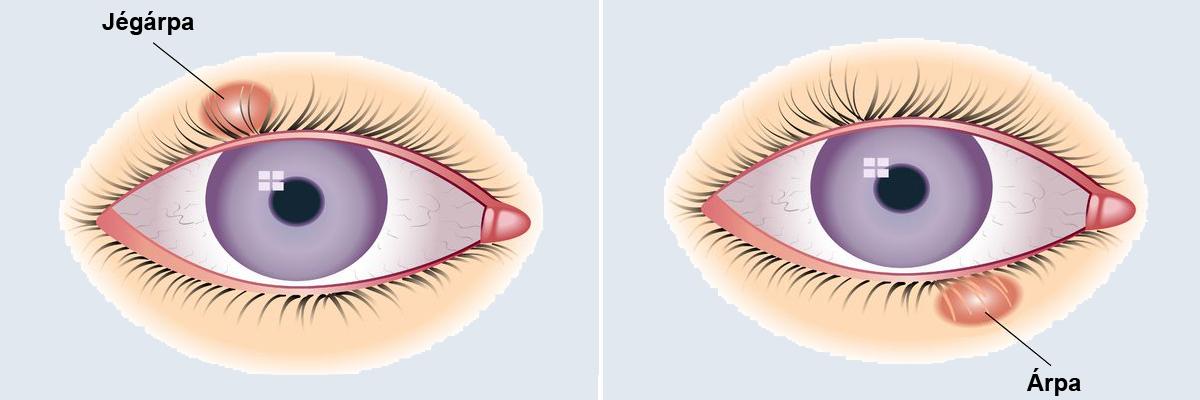 hogyan lehet eltávolítani a szem vörös foltját apró vörös foltok a felnőtt kezén