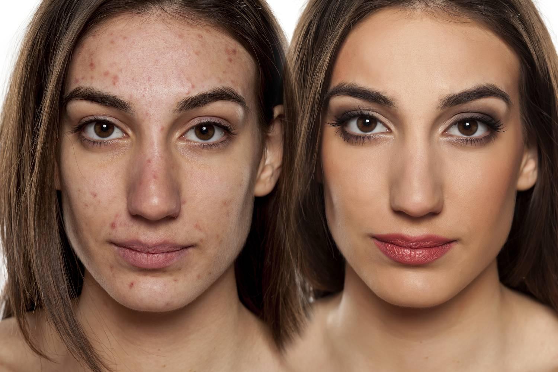 az utca után az arcon vörös folt pikkelysömör korai kezelés fotó