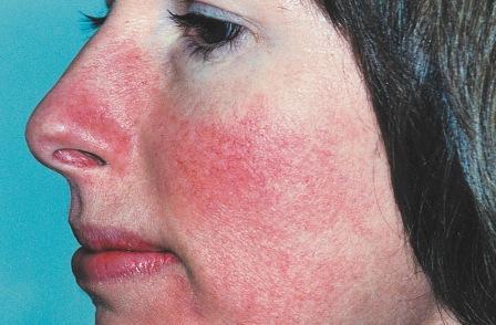 mint gyorsan eltávolítani az arcon lévő vörös foltokat a bőrön a zuzmához hasonló vörös folt