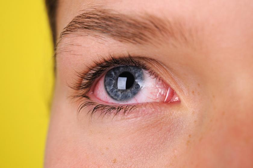 vörös folt a szem szemzugában a bőrön